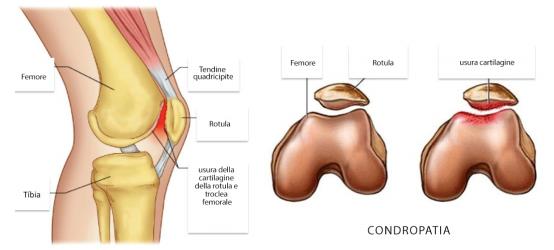 Condropatia Femoro Rotulea 03