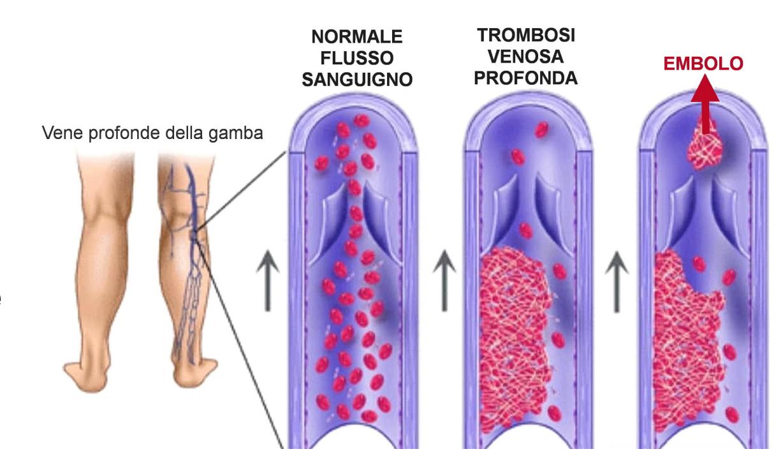 Tromboflebite 06