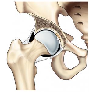 Displasia congenita anca 03