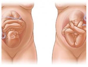 Displasia congenita anca 04